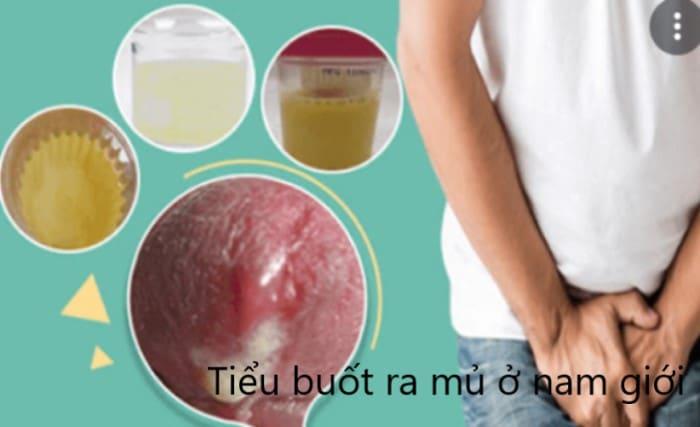 tieu buot co mu o nam gioi 1 - Cảnh báo tình trạng tiểu buốt có mủ ở nam giới và 5 bệnh lý nguy hiểm cần chú ý