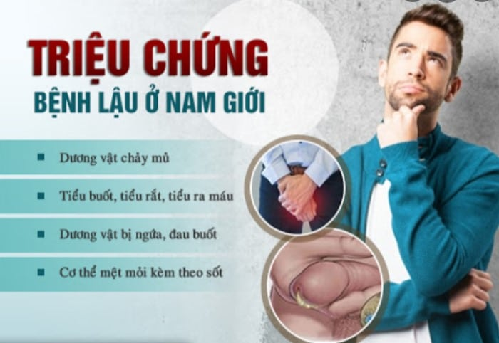 tieu buot co mu o nam gioi 2 - Cảnh báo tình trạng tiểu buốt có mủ ở nam giới và 5 bệnh lý nguy hiểm cần chú ý