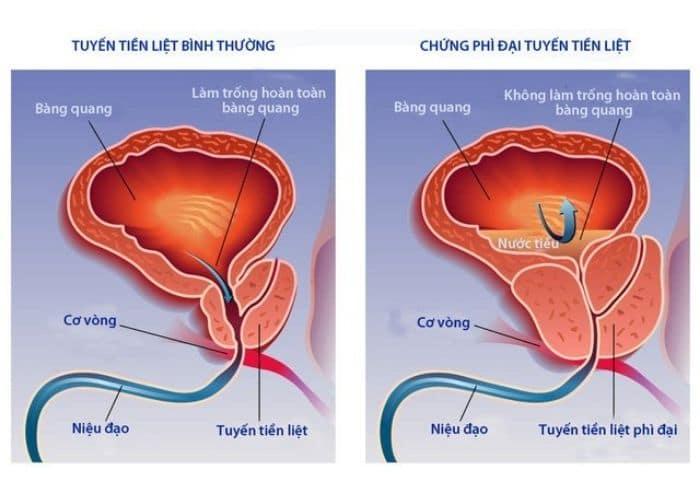 tieu kho bi dau do phi dai tien liet - Lý giải về hiện tượng đi tiểu khó bị đau và cách chữa trị hiệu quả nhất