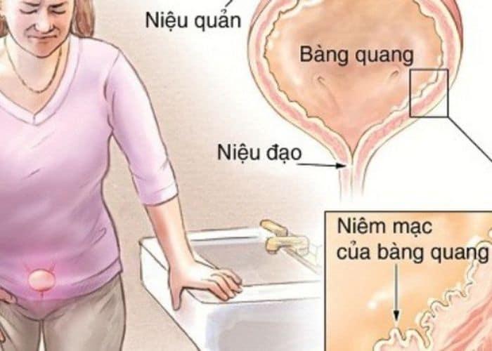 viem bang quang ke trieu chung - Tiểu nhiều lần, đau bụng dưới, đau khi quan hệ : Cảnh báo bệnh viêm bàng quang kẽ