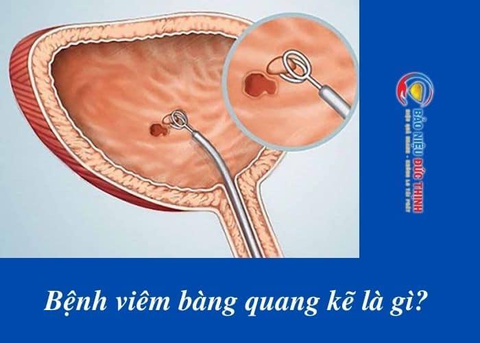 viem bang quang ke - Tiểu nhiều lần, đau bụng dưới, đau khi quan hệ : Cảnh báo bệnh viêm bàng quang kẽ