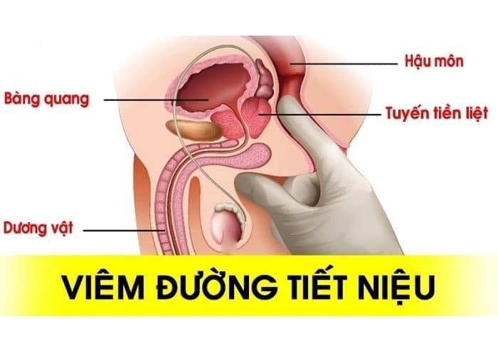 viem duong tiet nieu la gi - [HƯỚNG DẪN] 10+ Cách chữa viêm đường tiết niệu tại nhà nhanh khỏi nhất hiện nay