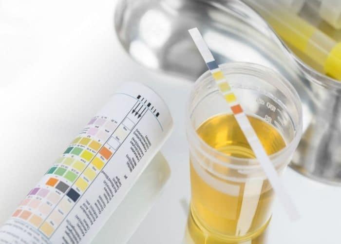Thiet ke khong ten 2 - Ý nghĩa chỉ số ASC axit ascorbic trong nước tiểu - Kết quả xét nghiệm